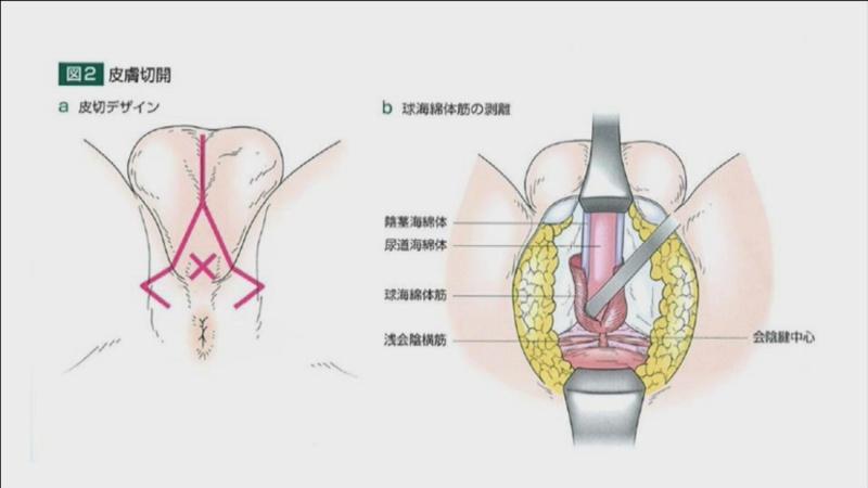 外観 手術 画像 転換 性